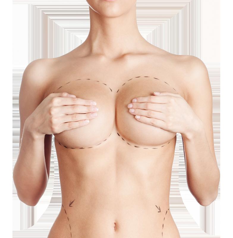 chirurgie esthetique du seins