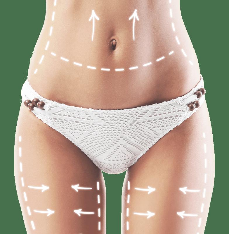 chirurgie esthetique du corps
