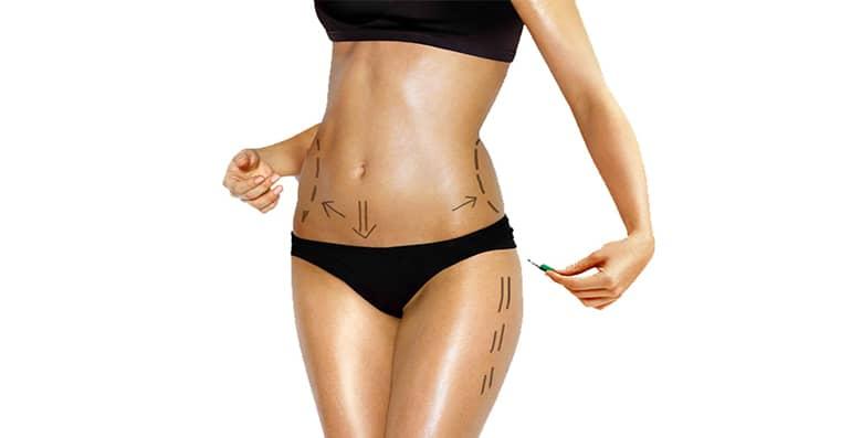 Bodylift , chirurgie réparatrice de la ceinture abdominale