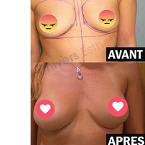 avant-et-apres-mammaires-2